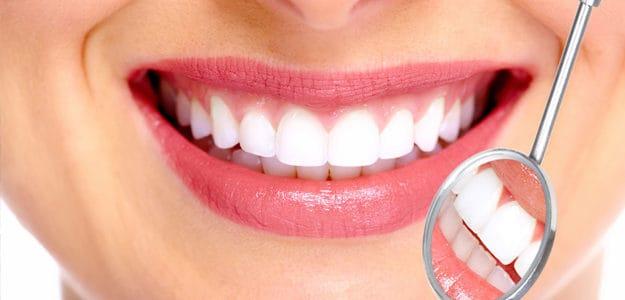 carillas-esteticas-dentales-para-blanquecer